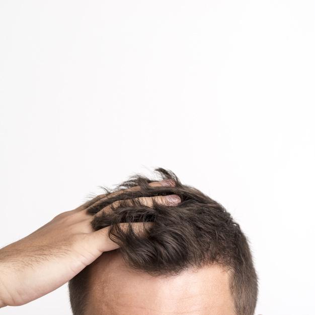 השתלות שיער ושיפור הדימוי העצמי